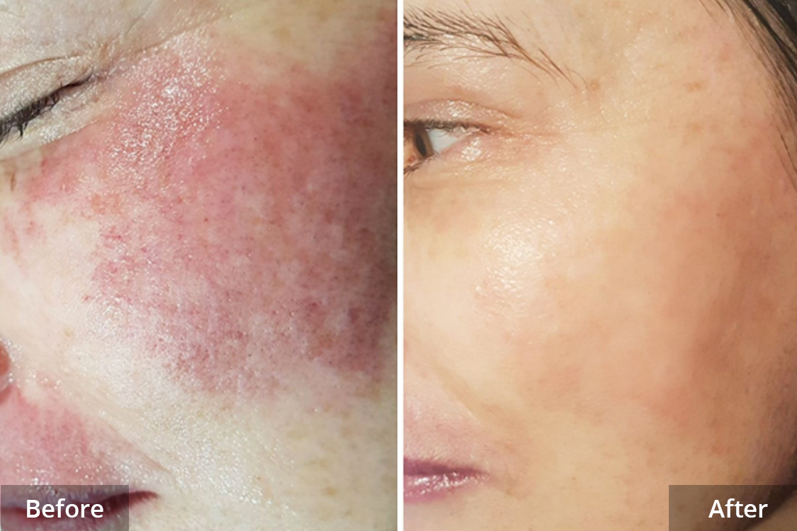 New Advanced Port Wine Laser and Skin Stain Technology
